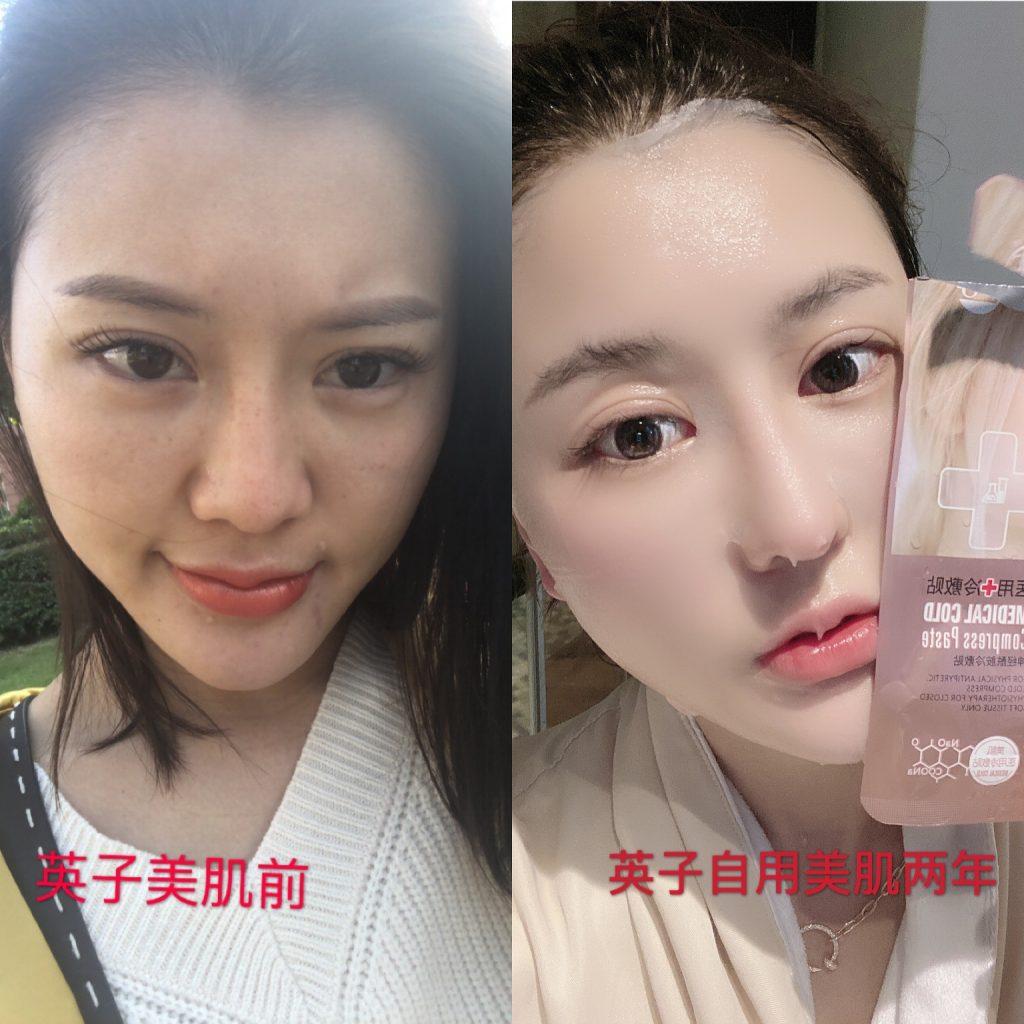 美肌优选创始人英子使用美肌护肤品的前后对比效果
