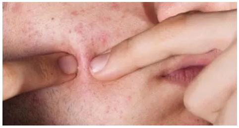 澳洲祛痘神药,一天平痘不留痘印,无激素不反弹,痘痘肌一定不能错过!